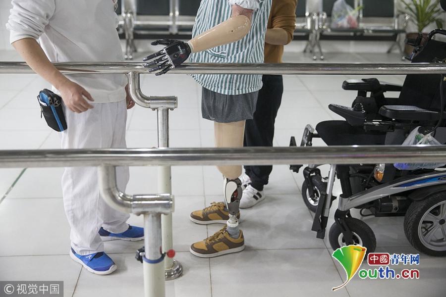 广州断肢男子装上智能手 能够吃饭刮胡子