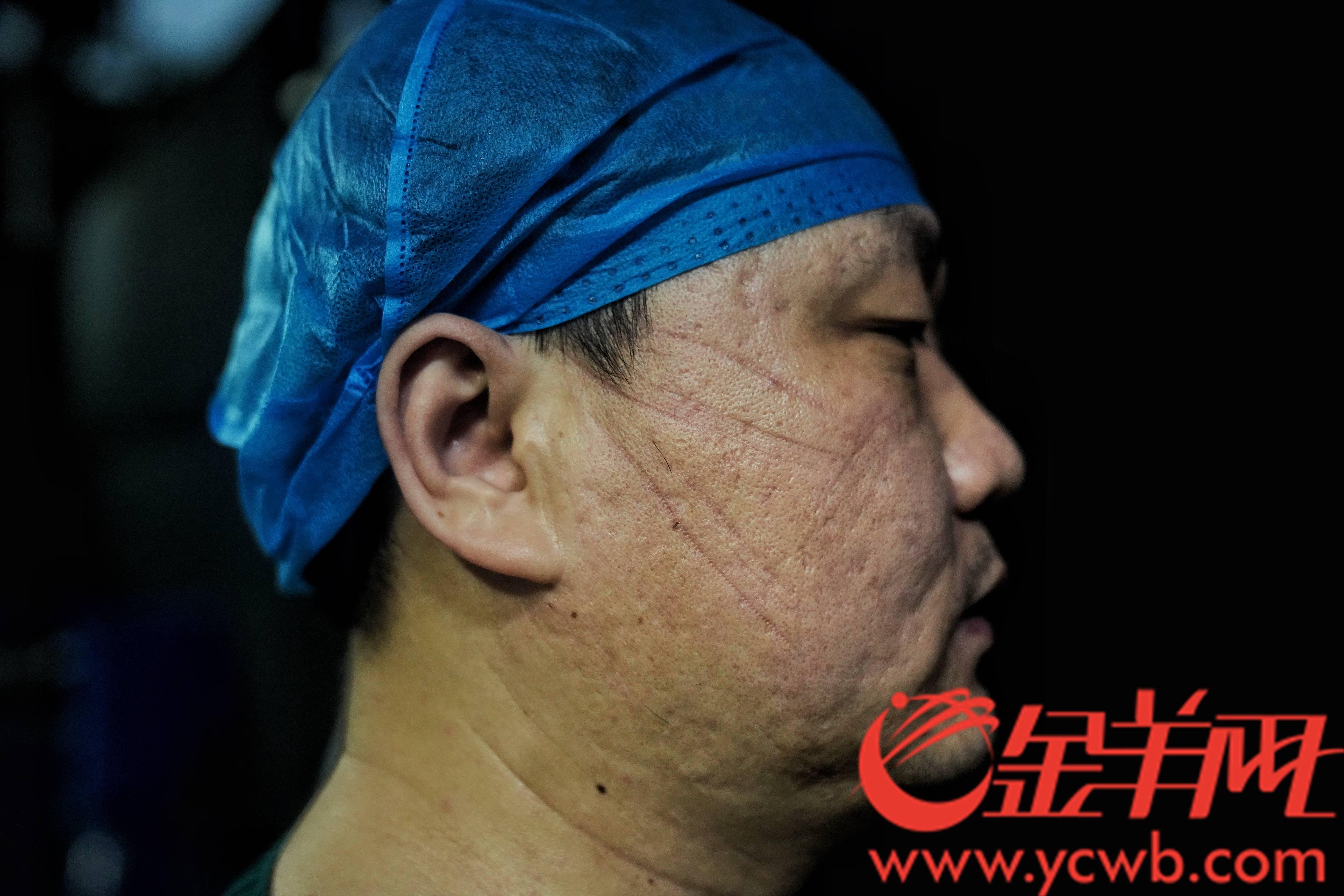 摘下口罩后,医务人员的脸颊上有深深的印痕。