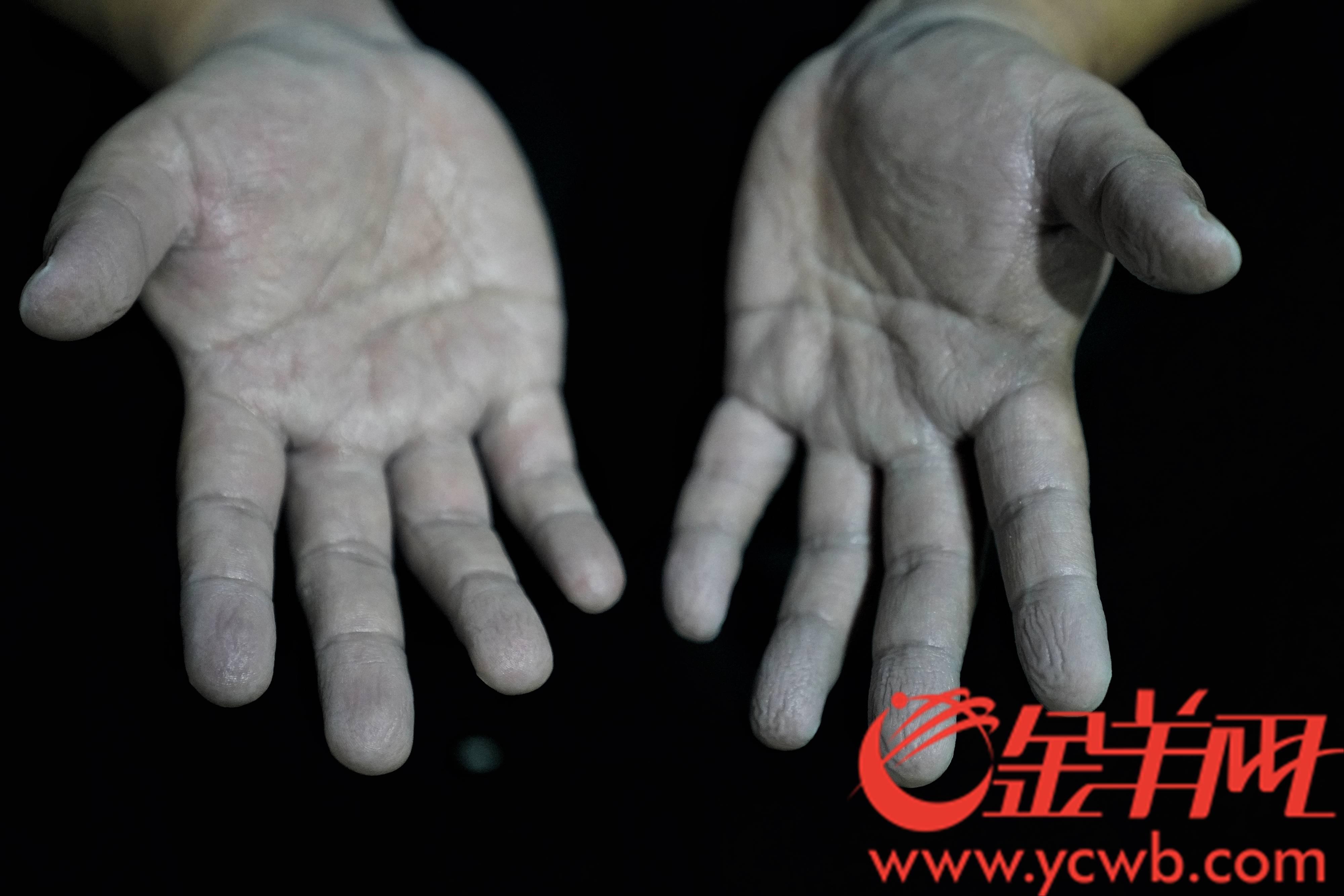 图为长时间戴橡胶手套,擦拭消毒液后,一名医务人员的双手。